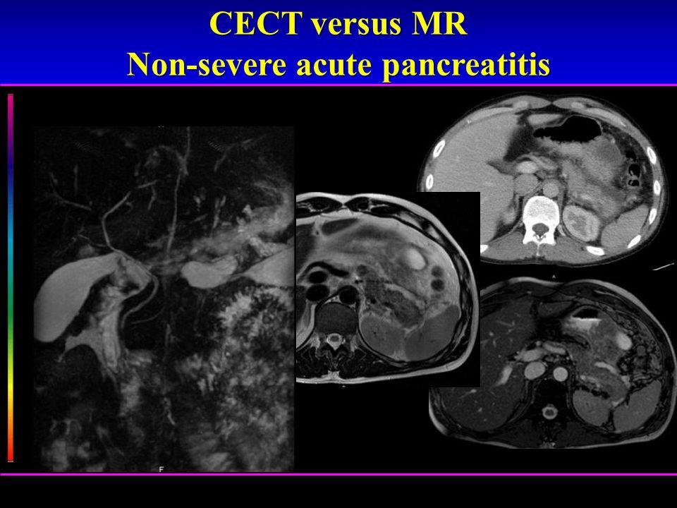 Non-severe acute pancreatitis