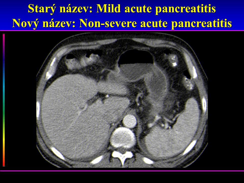 Starý název: Mild acute pancreatitis