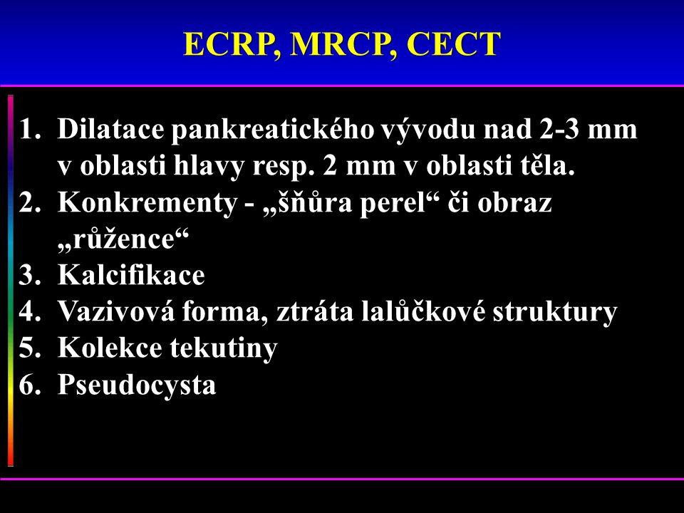 ECRP, MRCP, CECT Dilatace pankreatického vývodu nad 2-3 mm v oblasti hlavy resp. 2 mm v oblasti těla.