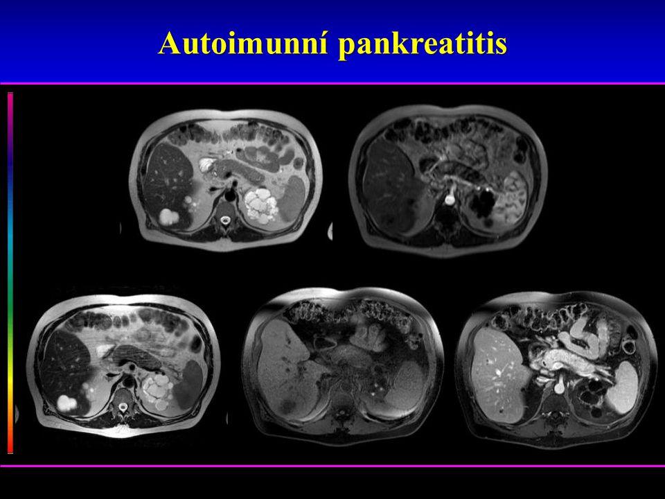 Autoimunní pankreatitis