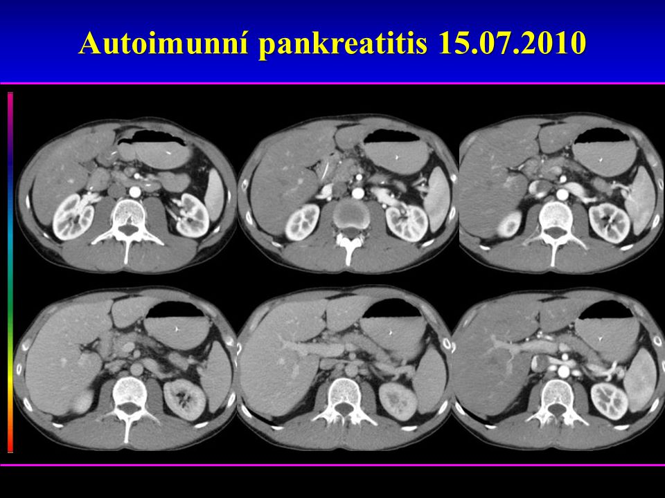 Autoimunní pankreatitis 15.07.2010