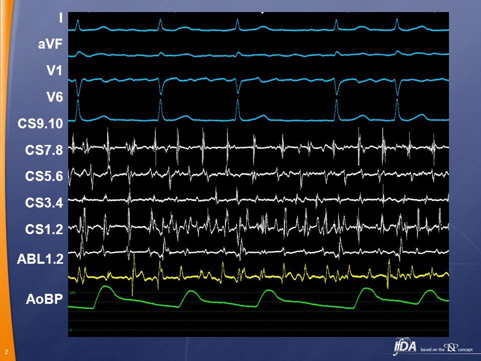 I aVF V1 V6 CS9.10 CS7.8 CS5.6 CS3.4 CS1.2 ABL1.2 AoBP