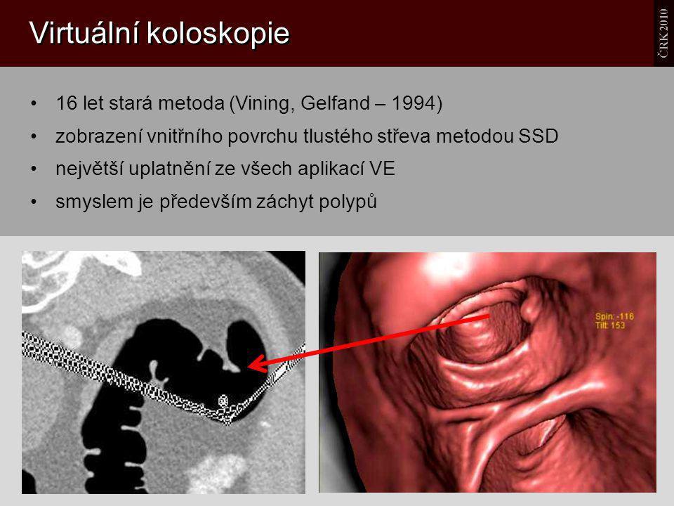 Virtuální koloskopie 16 let stará metoda (Vining, Gelfand – 1994)