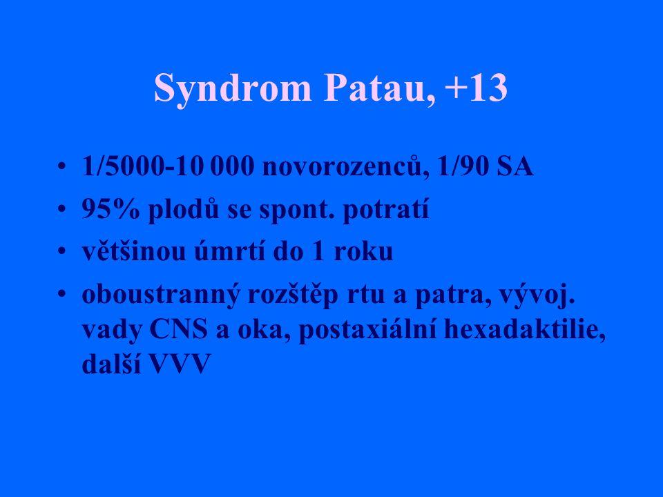 Syndrom Patau, +13 1/5000-10 000 novorozenců, 1/90 SA