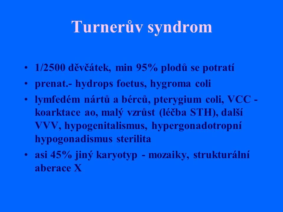 Turnerův syndrom 1/2500 děvčátek, min 95% plodů se potratí