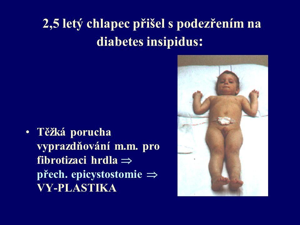 2,5 letý chlapec přišel s podezřením na diabetes insipidus: