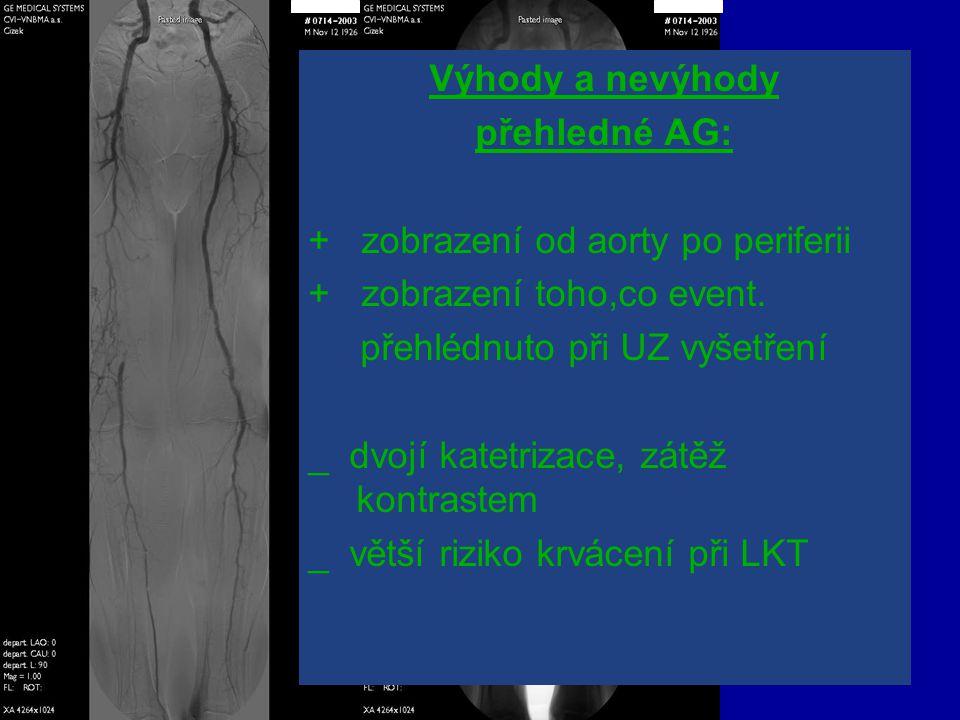 Výhody a nevýhody přehledné AG: + zobrazení od aorty po periferii. + zobrazení toho,co event.