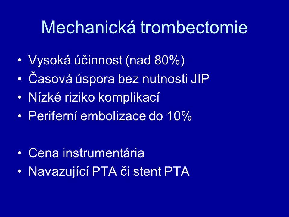 Mechanická trombectomie