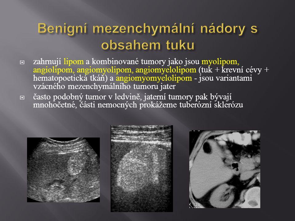 Benigní mezenchymální nádory s obsahem tuku