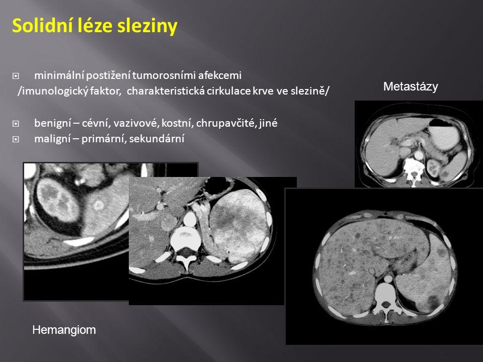 Solidní léze sleziny minimální postižení tumorosními afekcemi
