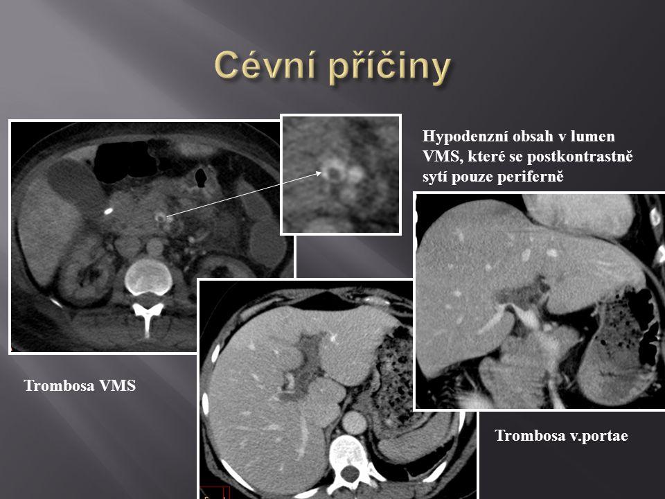 Cévní příčiny Hypodenzní obsah v lumen VMS, které se postkontrastně sytí pouze periferně. Trombosa VMS.