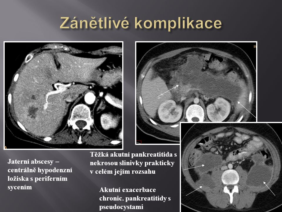 Zánětlivé komplikace Těžká akutní pankreatitida s nekrosou slinivky prakticky v celém jejím rozsahu.