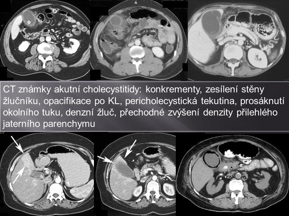 CT známky akutní cholecystitidy: konkrementy, zesílení stěny žlučníku, opacifikace po KL, pericholecystická tekutina, prosáknutí okolního tuku, denzní žluč, přechodné zvýšení denzity přilehlého jaterního parenchymu