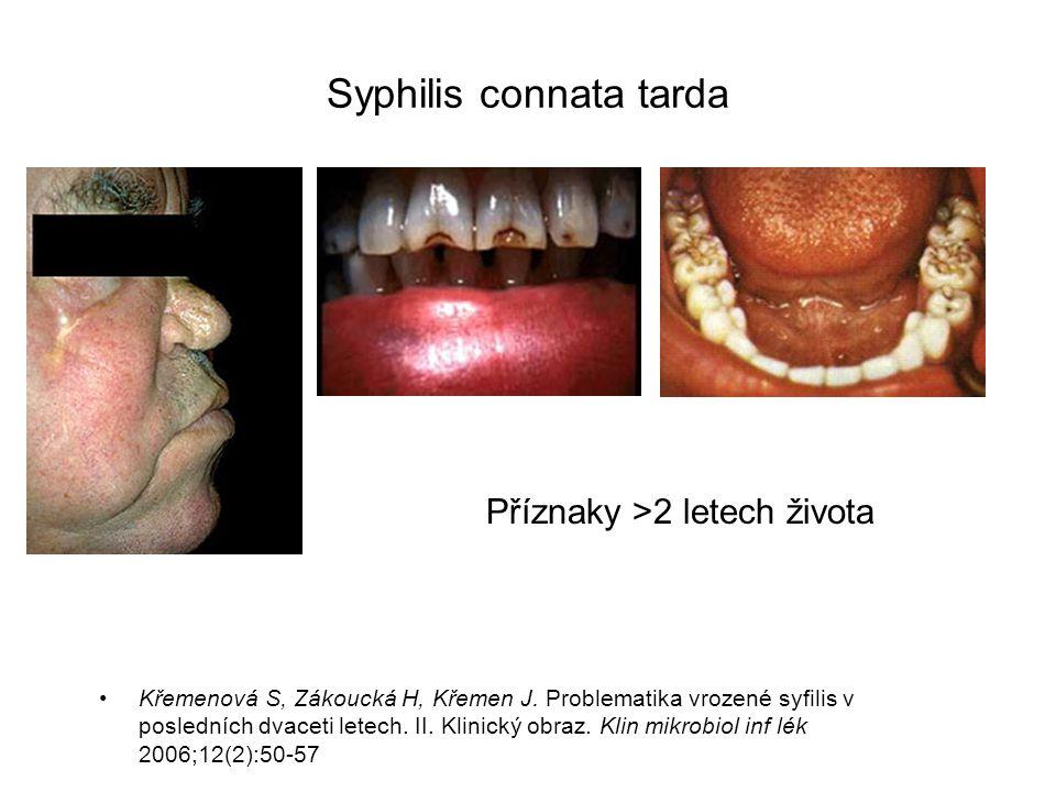 Syphilis connata tarda