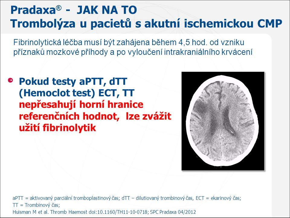 Pradaxa® - JAK NA TO Trombolýza u pacietů s akutní ischemickou CMP