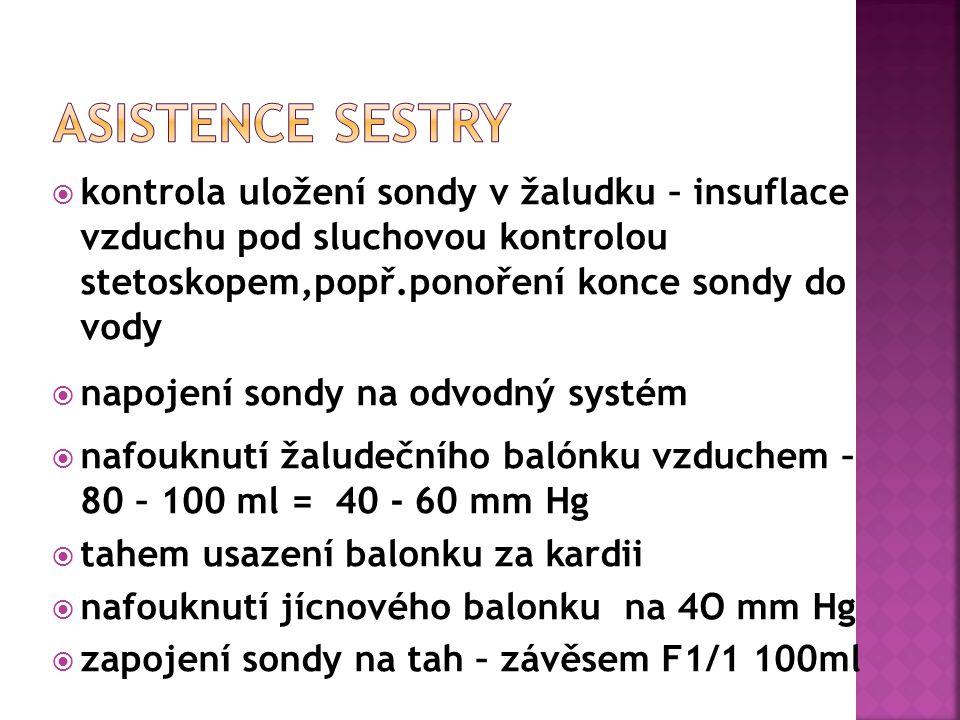 ASISTENCE SESTRY kontrola uložení sondy v žaludku – insuflace vzduchu pod sluchovou kontrolou stetoskopem,popř.ponoření konce sondy do vody.