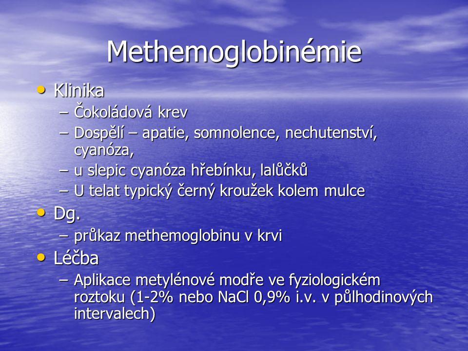 Methemoglobinémie Klinika Dg. Léčba Čokoládová krev