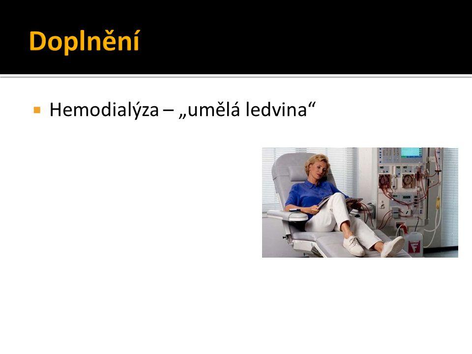 """Doplnění Hemodialýza – """"umělá ledvina"""