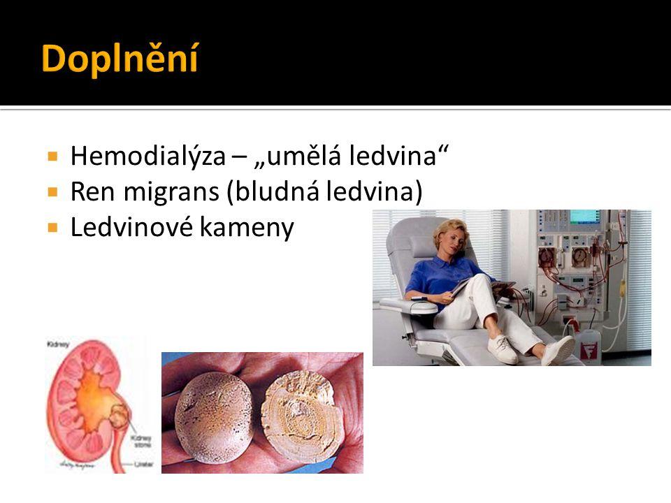 """Doplnění Hemodialýza – """"umělá ledvina Ren migrans (bludná ledvina)"""