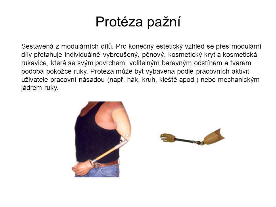 Protéza pažní Sestavená z modulárních dílů. Pro konečný estetický vzhled se přes modulární.