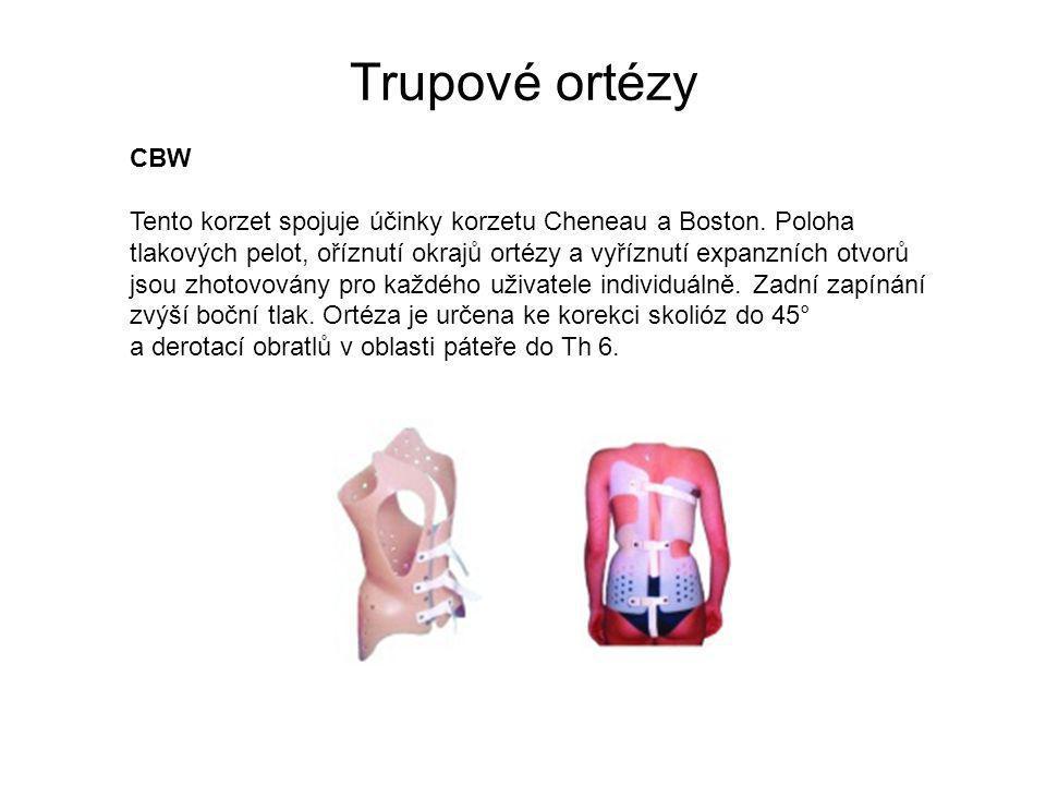 Trupové ortézy