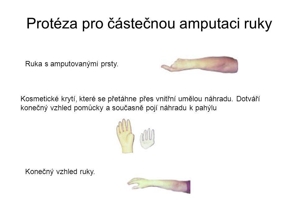Protéza pro částečnou amputaci ruky