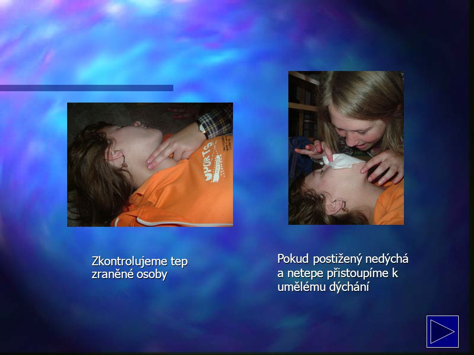 Pokud postižený nedýchá a netepe přistoupíme k umělému dýchání