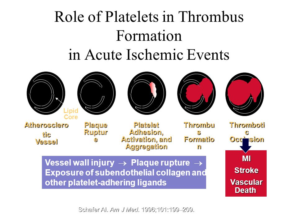 Role of Platelets in Thrombus Formation in Acute Ischemic Events