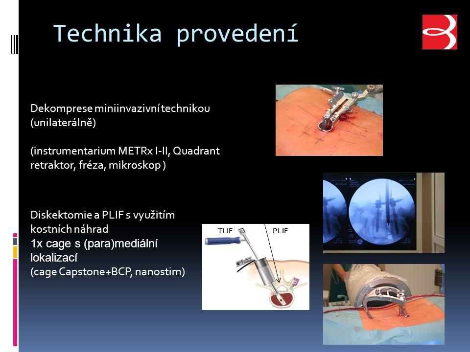 Technika provedení Dekomprese miniinvazivní technikou (unilaterálně)