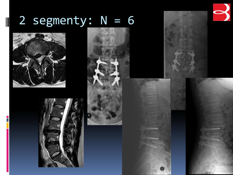 2 segmenty: N = 6