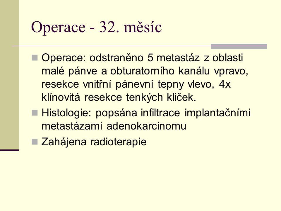 Operace - 32. měsíc