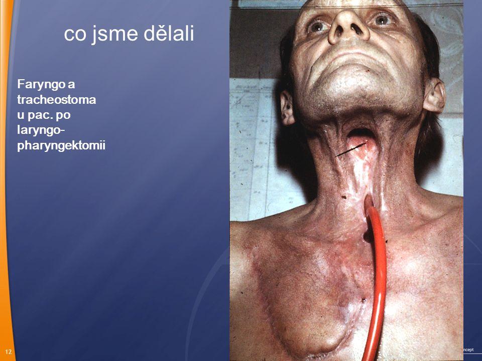 Faryngo a tracheostoma u pac. po laryngo- pharyngektomii