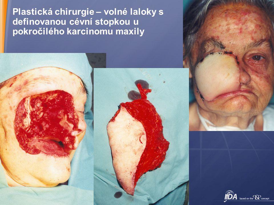 Plastická chirurgie – volné laloky s definovanou cévní stopkou u pokročilého karcinomu maxily