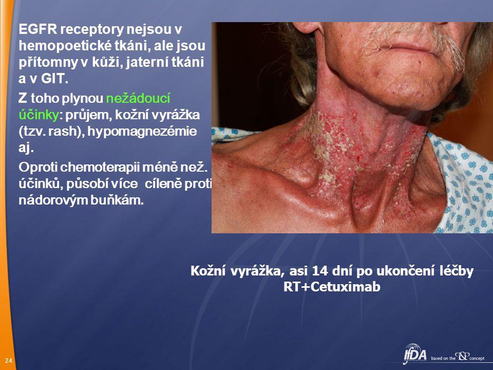 Kožní vyrážka, asi 14 dní po ukončení léčby RT+Cetuximab