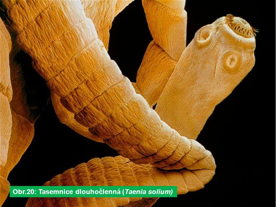 Obr.20: Tasemnice dlouhočlenná (Taenia solium)