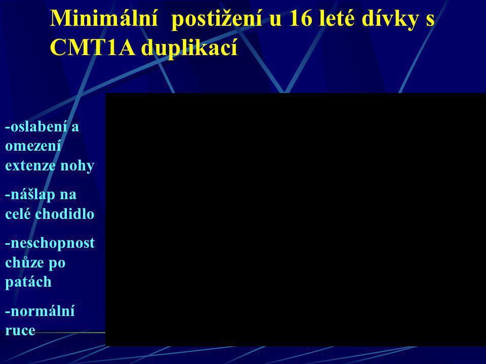 Minimální postižení u 16 leté dívky s CMT1A duplikací