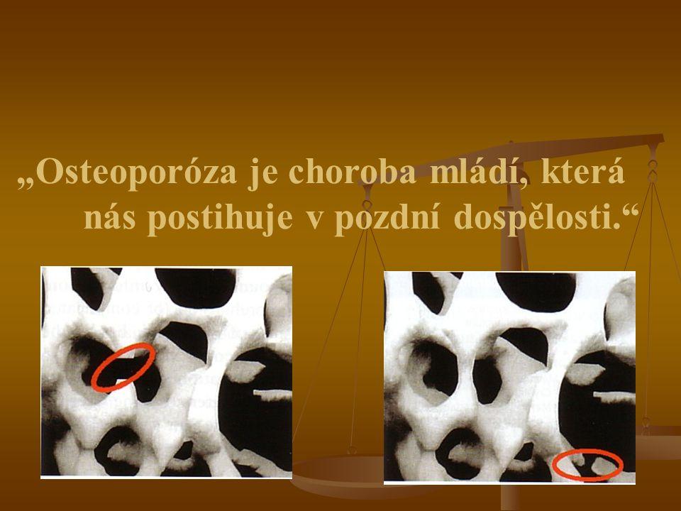 """""""Osteoporóza je choroba mládí, která"""