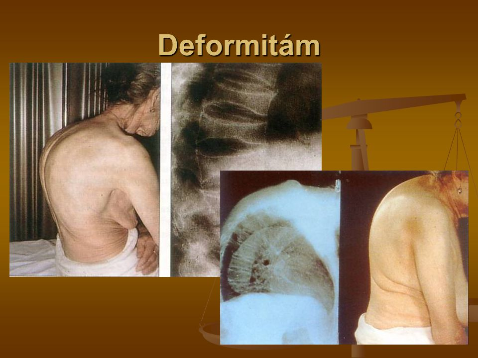 Deformitám