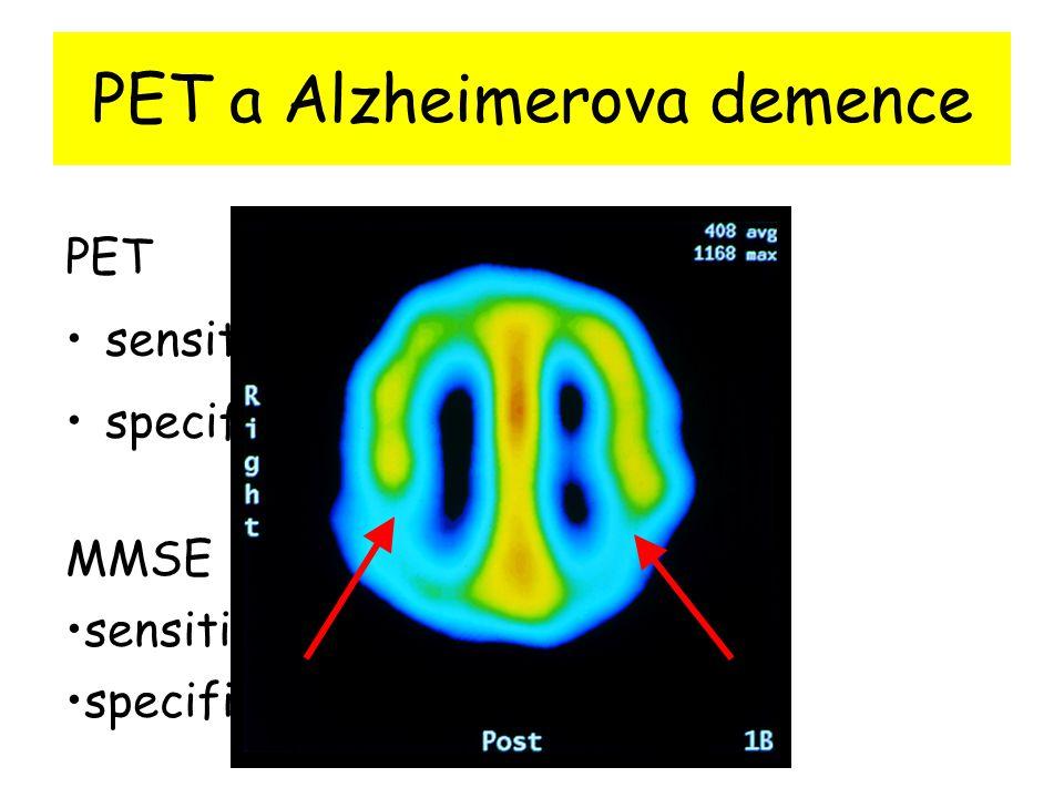 PET a Alzheimerova demence