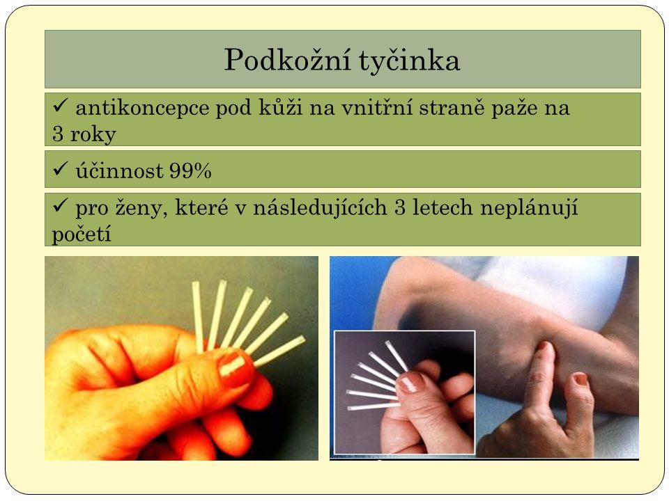 Podkožní tyčinka antikoncepce pod kůži na vnitřní straně paže na