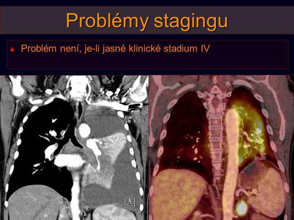 Problémy stagingu Problém není, je-li jasné klinické stadium IV