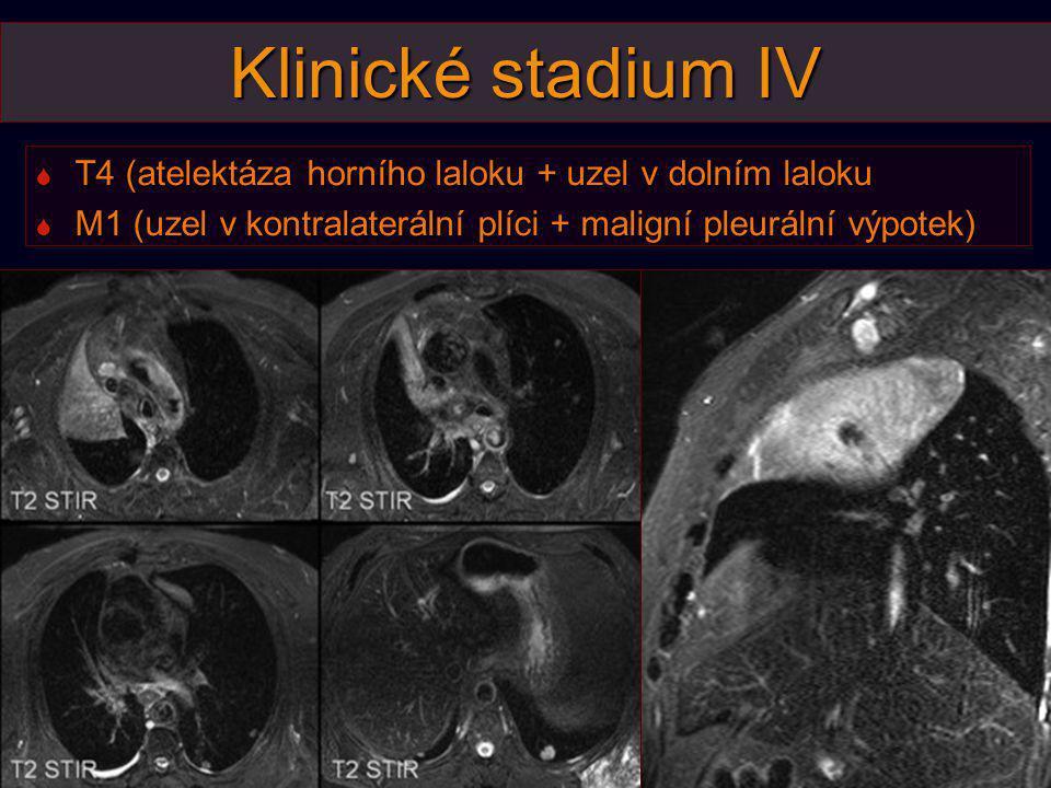 Klinické stadium IV T4 (atelektáza horního laloku + uzel v dolním laloku.