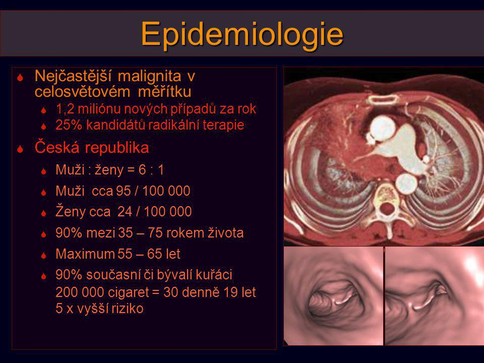 Epidemiologie Nejčastější malignita v celosvětovém měřítku