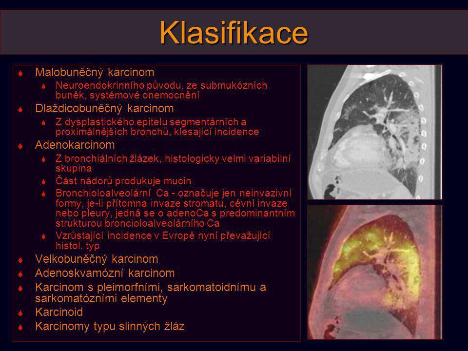 Klasifikace Malobuněčný karcinom Dlaždicobuněčný karcinom