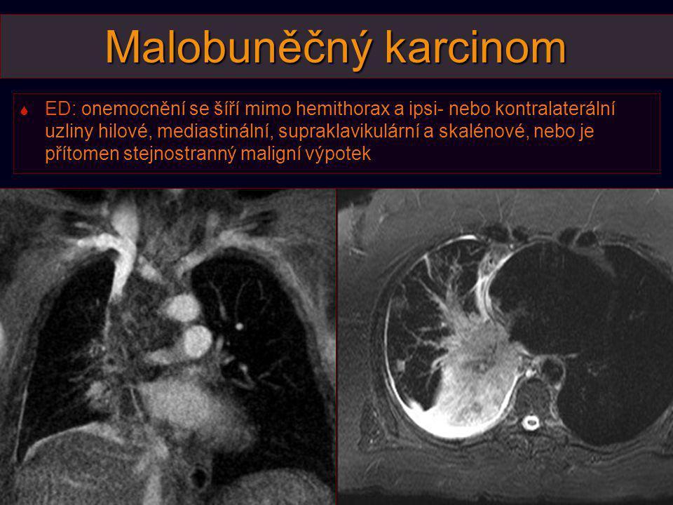 Malobuněčný karcinom