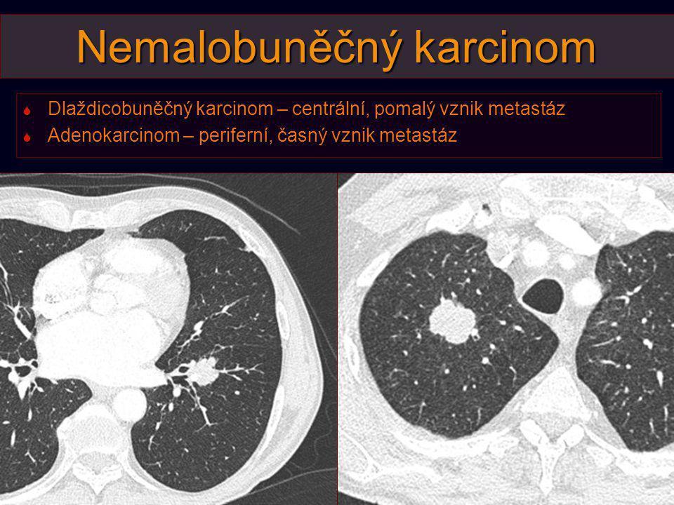 Nemalobuněčný karcinom