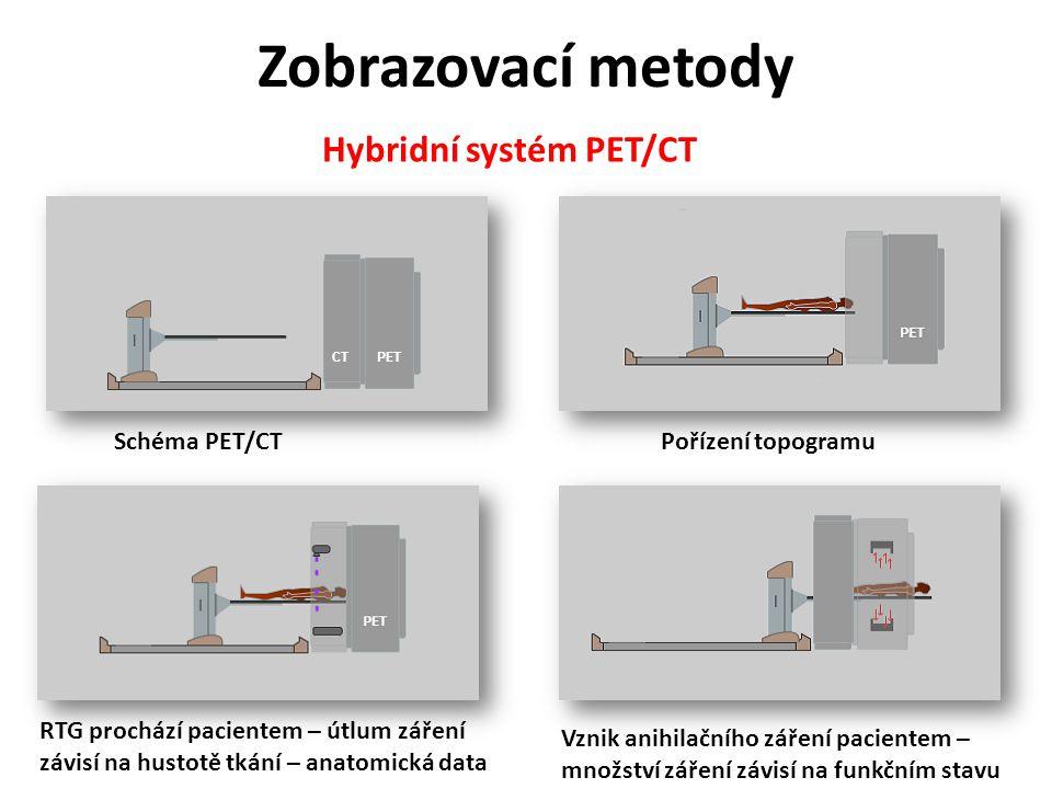 Hybridní systém PET/CT