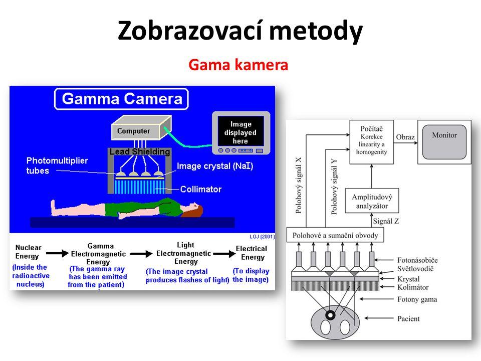 Zobrazovací metody Gama kamera