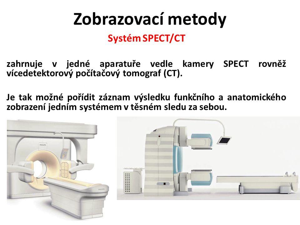 Zobrazovací metody Systém SPECT/CT
