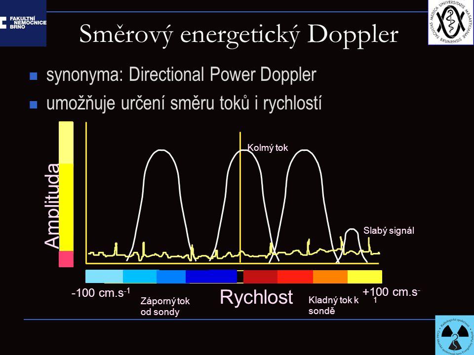 Směrový energetický Doppler